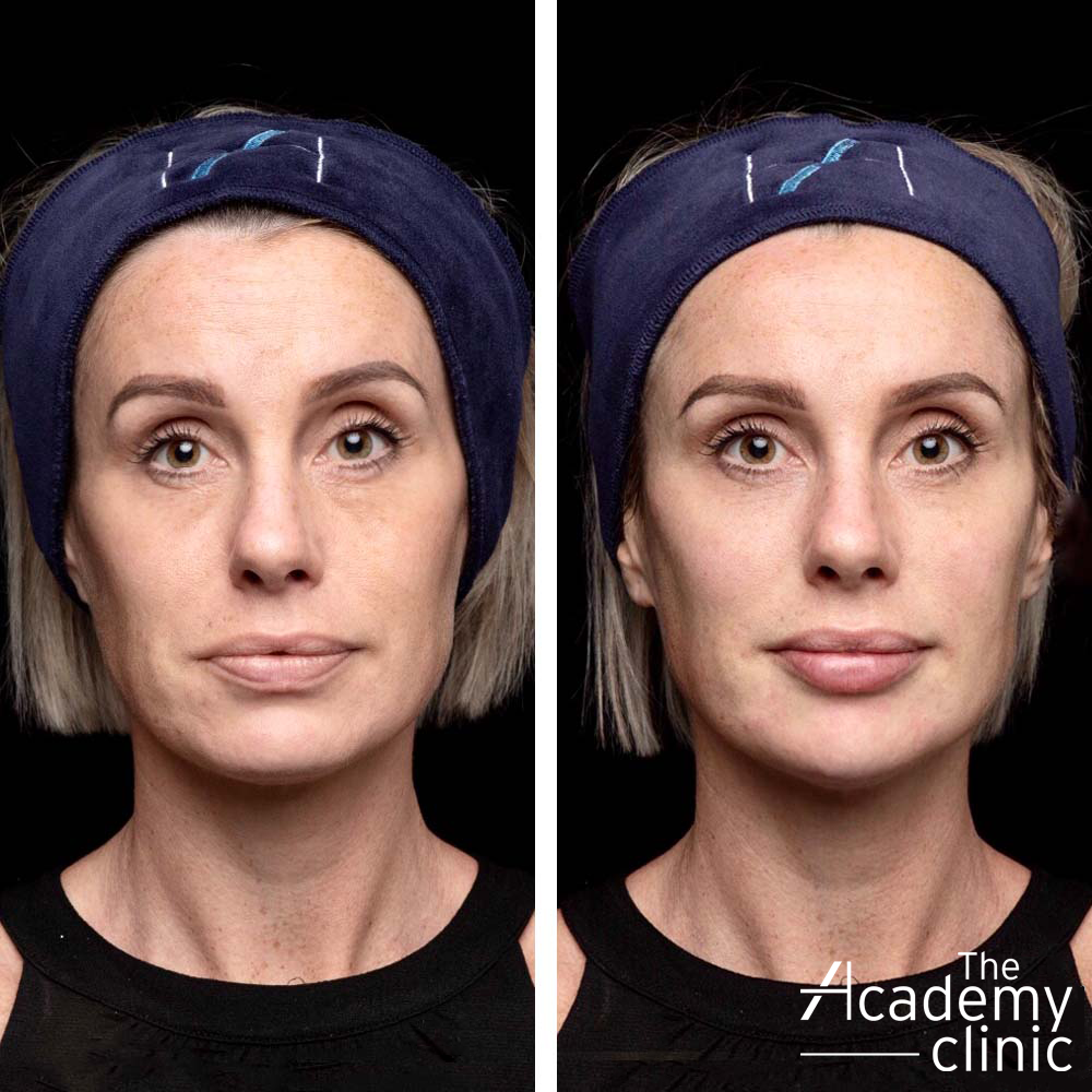 Full face rejuvenation results The Academy Clinic