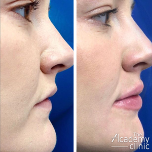 Lip filler treatment profile The Academy Clinic