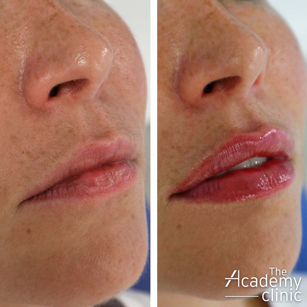 Natural Looking Lip filler The Academy Clinic