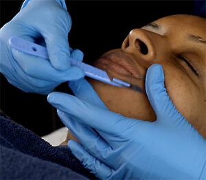 What is dermaplaning - the Academy Clinic London