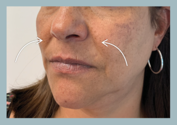 What are Nasolabial Folds? Areas shown